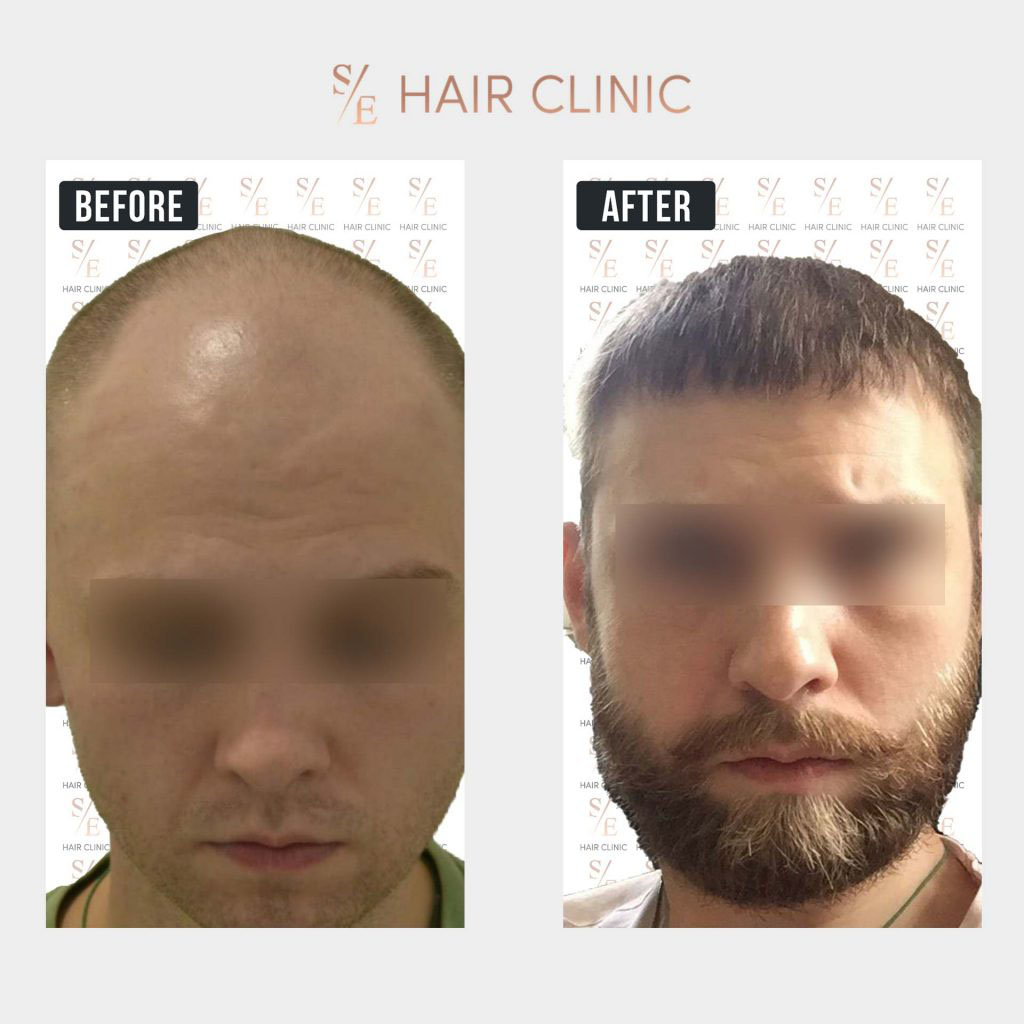 Before & After Images   SE Hair Clinic   Hair Transplant in ...